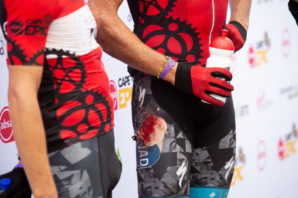 Cape Epic 2019 - Matt Beers se ve 3. etapě zle domlátil...